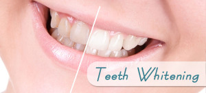 Dr Jennifer T Rose Teeth Whitening